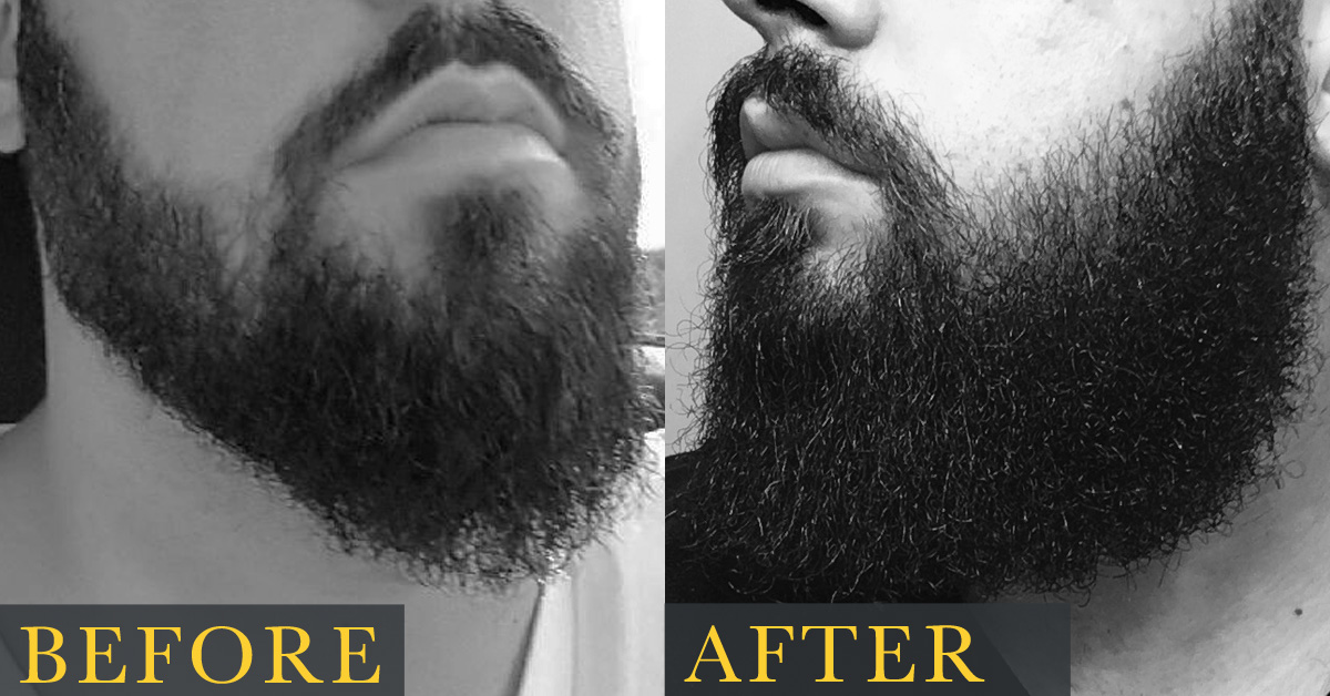 Tip for growing facial hair