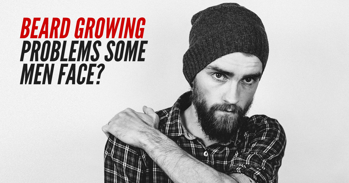 Beard-Growing-Problems-Some-Men-Face